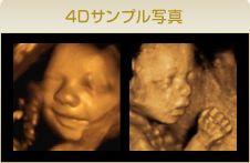 4D超音波,サンプル写真